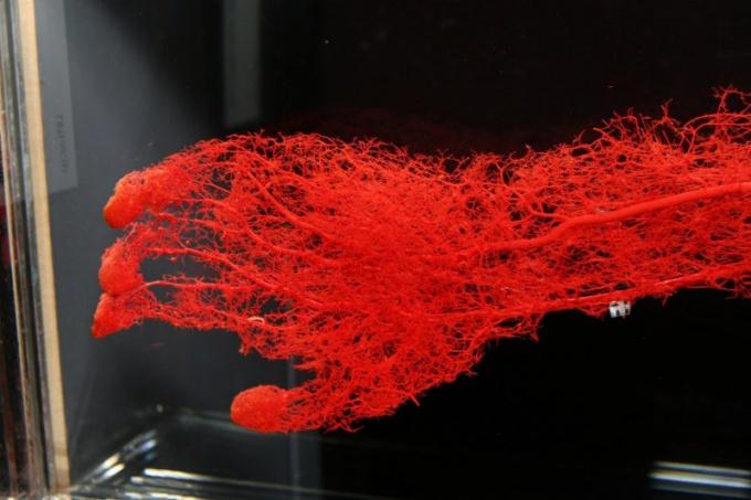 Чем артерии отличаются от вен