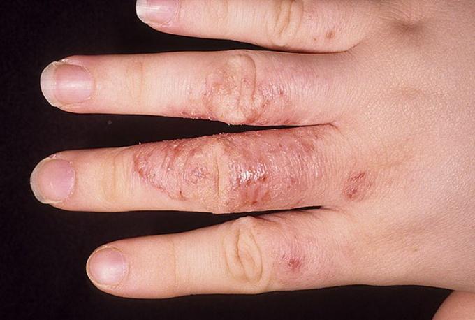Как лечить грибок на руках