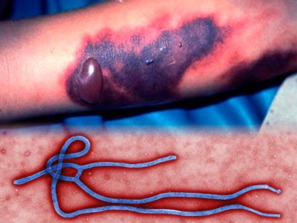 Лихорадка Эбола фото больных