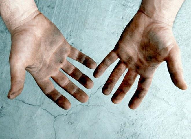 Какие бывают глисты у человека