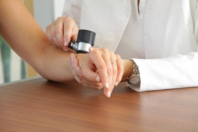 Моллюски на теле: причины возникновения и лечение