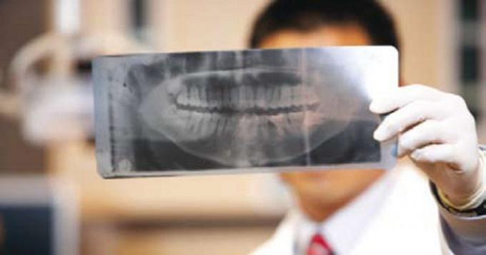 Сломанная челюсть: симптомы и лечение