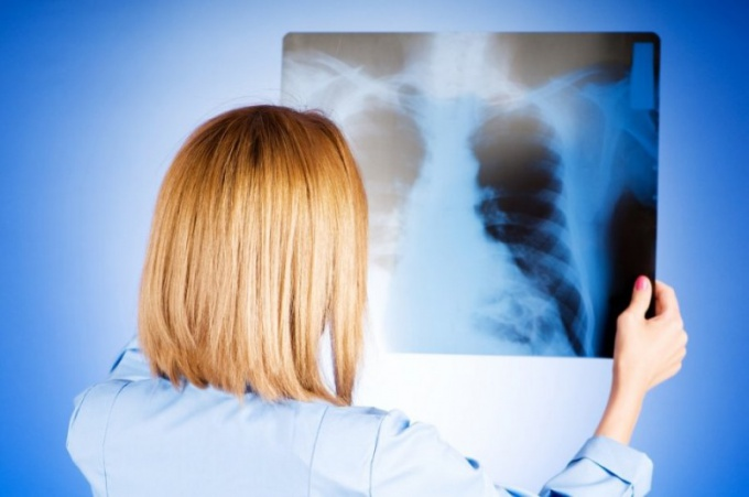 Пневмония: насколько это серьезно