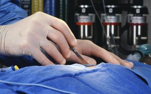 Зачем хирурги тщательно моют руки, если оперируют в перчатках