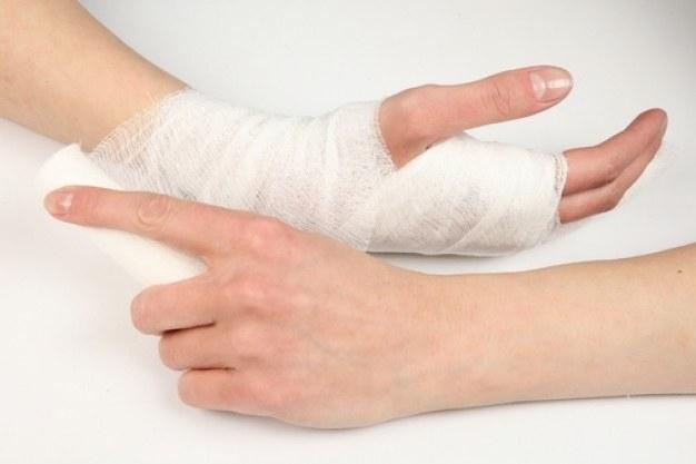 Перелом руки - дело серьезное
