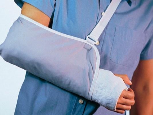 Фиксирование перелома лучевой кости