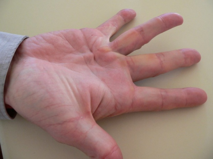 How to treat contracture of the palm
