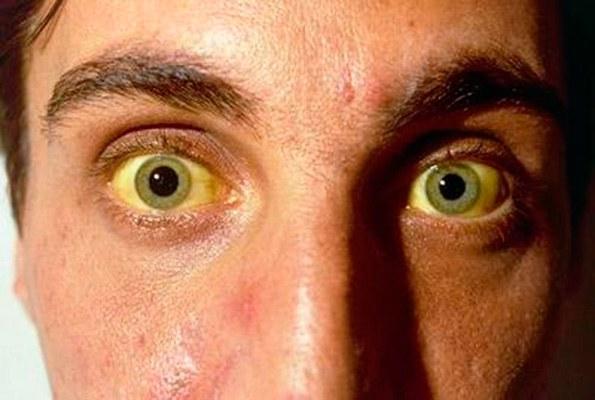 Пожелтение глаз является распространенным симптомом заболеваний печени