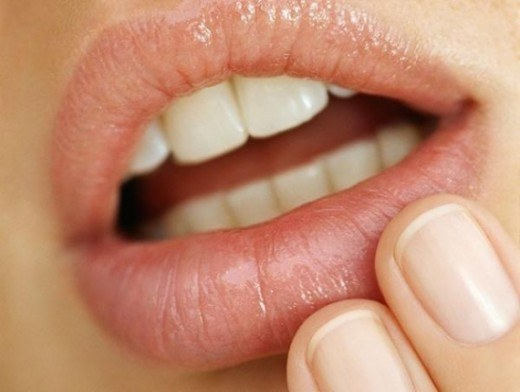 How to treat acne on your lip