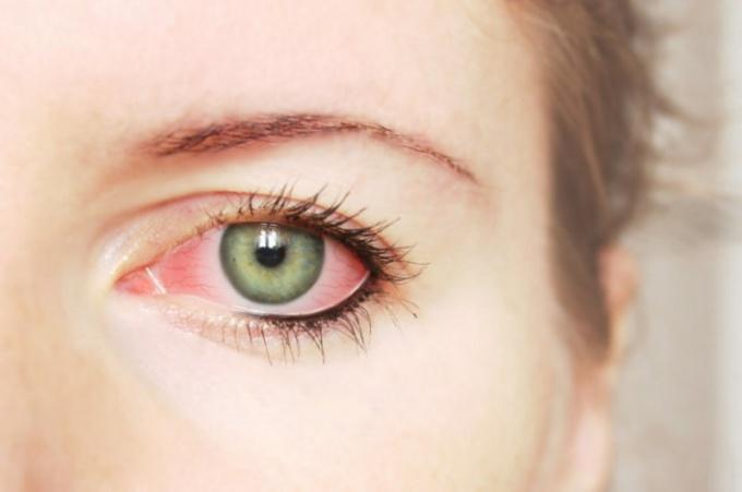 Как лечить воспаленные глаза