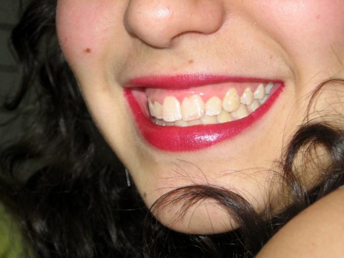 Зубы премудрости - это достояние наших прародителей и загадка природы