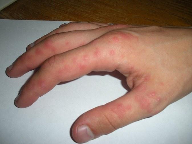 Почему возникают красные уплотнения на коже