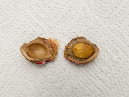 Зародыш в косточковом семени