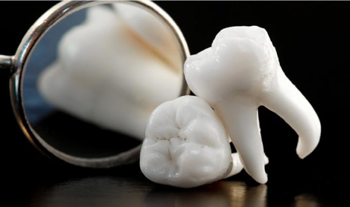 Зуб мудрости: особенности развития и роста