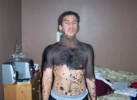 Сплошной волосяной покров у человека - атавизм