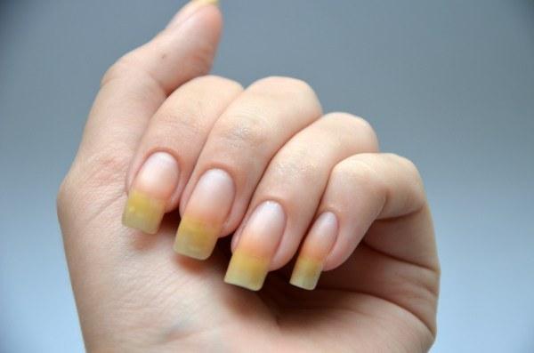 Желтые ногти как признак серьезных нарушений в организме