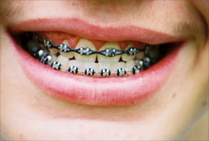 Whether to place braces at age 30