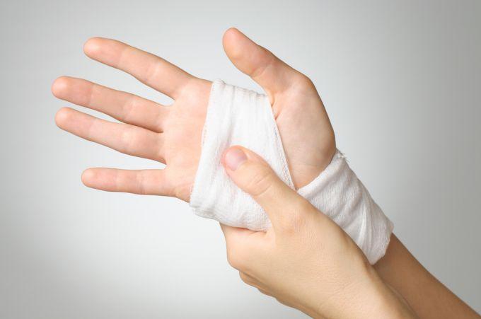 Народные средства для лечения порезов на руках