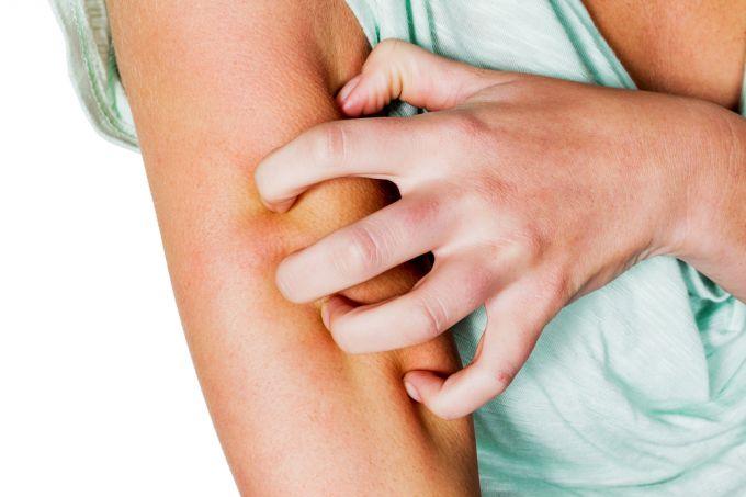 Как оказать помощь при появлении зудящей сыпи или раздражения на коже