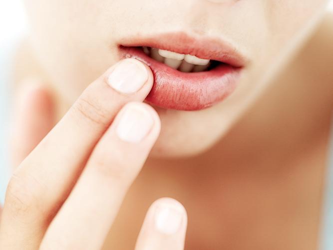Как предотвратить появление герпеса на губах