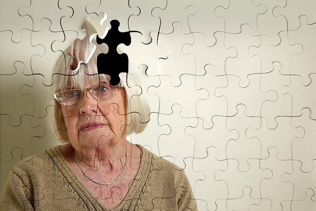 Синдром деменции