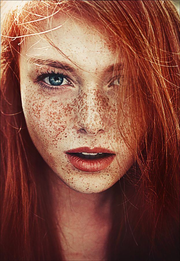 How to get rid of freckles at home