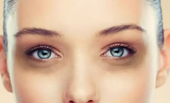 How to eliminate dark circles under the eyes