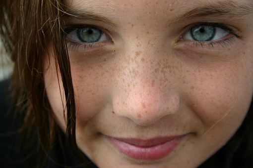 Folk remedies for fighting freckles