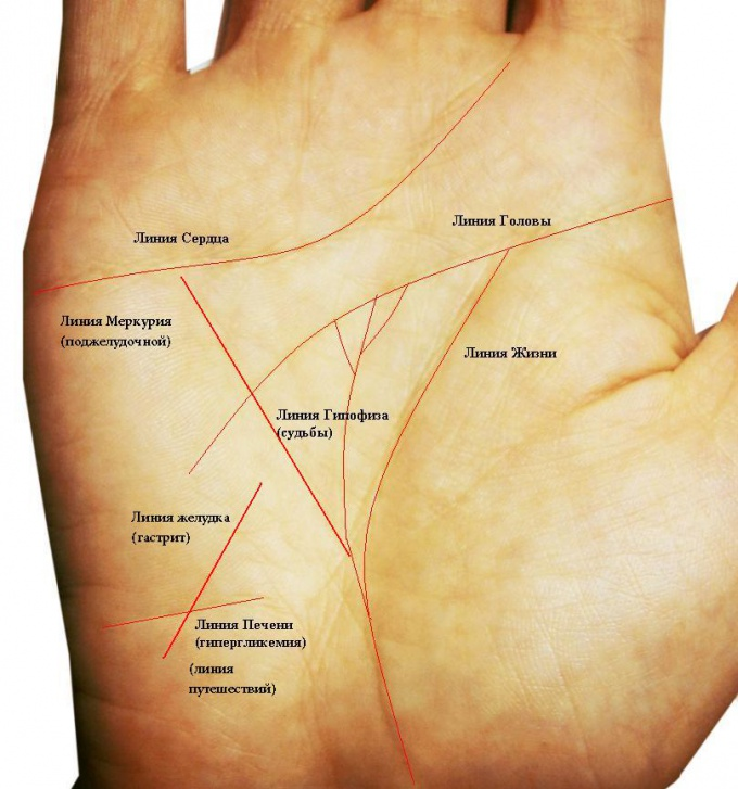 Как узнать о склонности к сахарному диабету (инсулинонезависимому) по руке