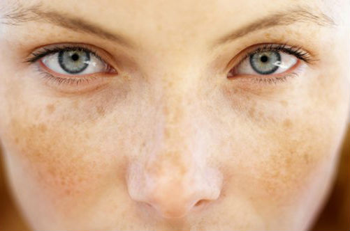 How to remove freckles at home