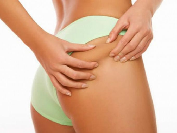 How to get rid of cellulite at home: 6 ways