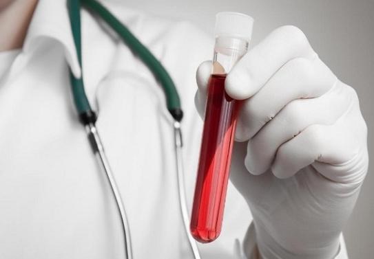 Как лечить повышенный билирубин