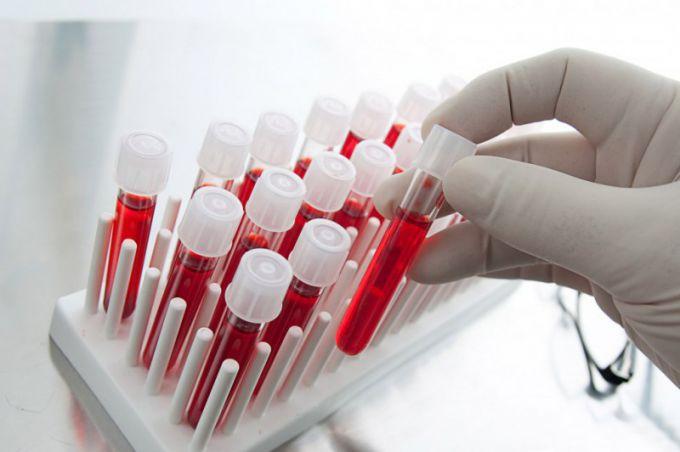 На что влияют тромбоциты при гепатите — Лечение гепатитов