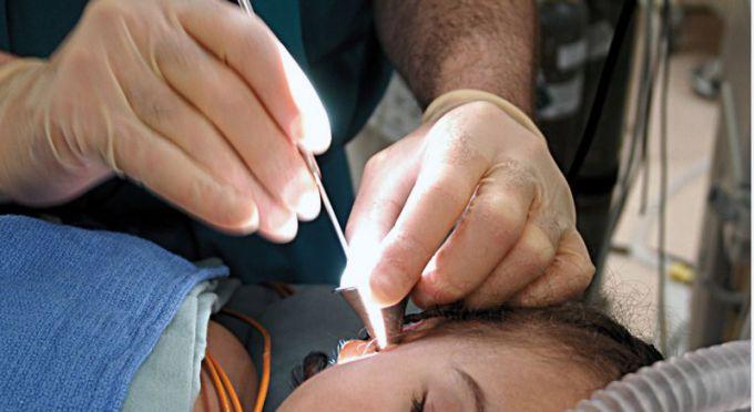 Серьезные манипуляции с ухом должен проводить врач