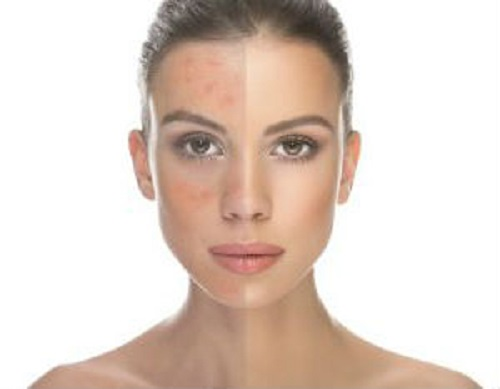 Rosacea on face: treatment with folk remedies
