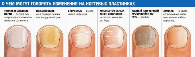 Diagnosis of the body through nails