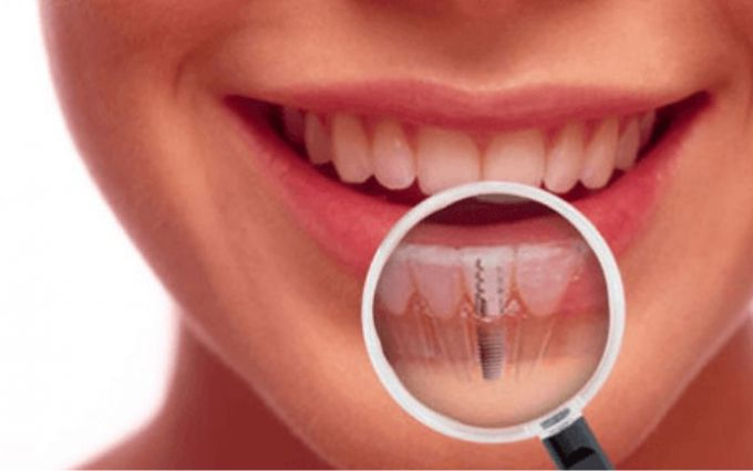 Как вставить зубы, если вы их потеряли