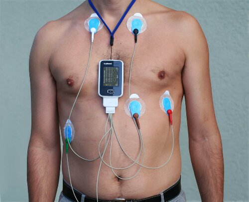 Rules of preparation for monitoring by the method of Holter