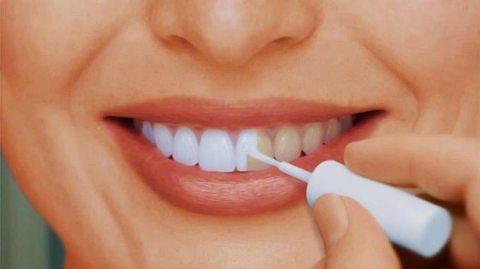 Как использовать перекись водорода для отбеливания зубов