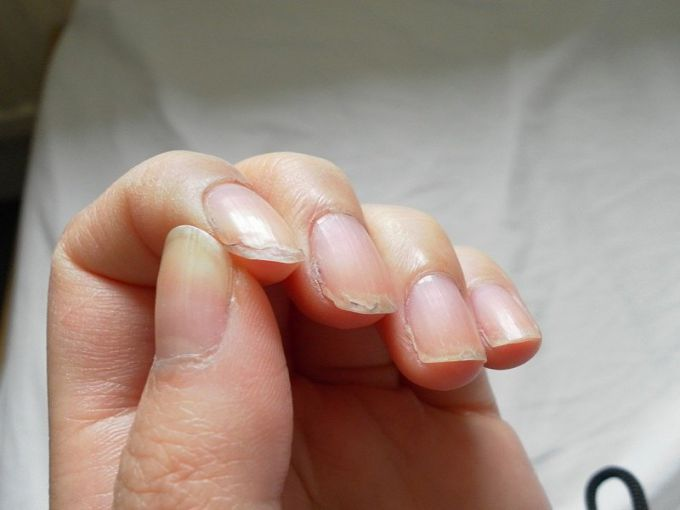 Why nails are cracked and what to do about it