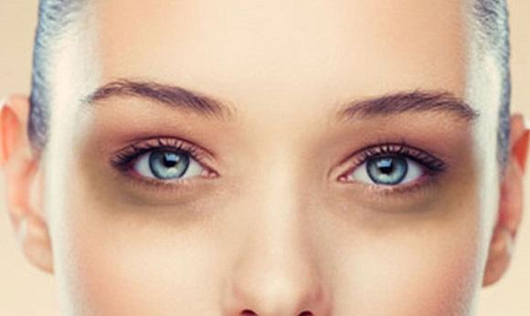 Почему появляются синяки под глазами