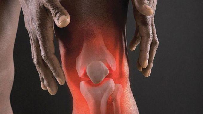 Что такое остеоартроз коленного сустава