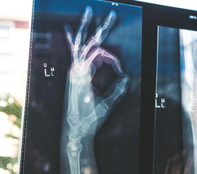 Коварный остеопороз