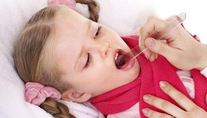 Как лечить ангину у ребенка 5 лет: симптомы и советы от доктора Комаровского