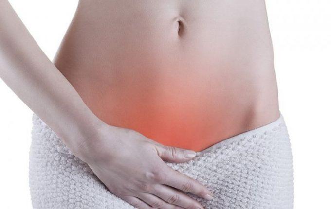 Киста яичника: что это и как это лечить