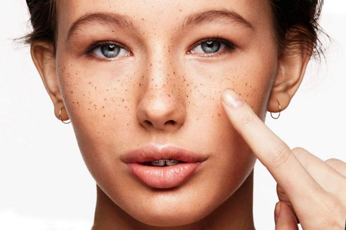 How to get rid of pigmentation and freckles
