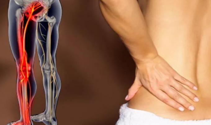 Симптомы и лечение седалищного нерва в домашних условиях