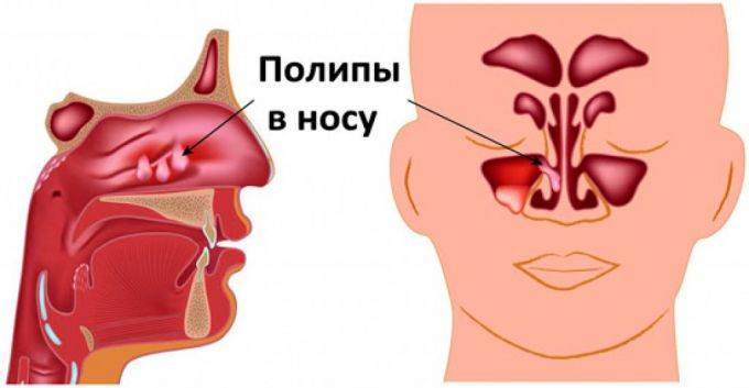 Полипы в носу: что это такое, симптомы, лечение, причины возникновения
