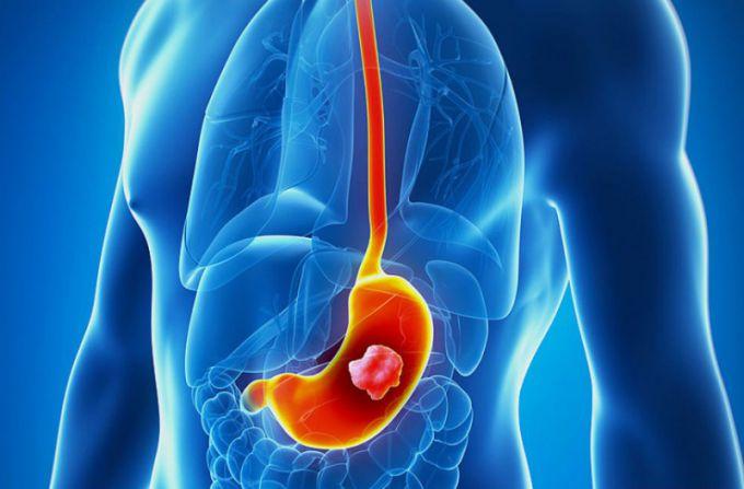 Первые симптомы рака желудка
