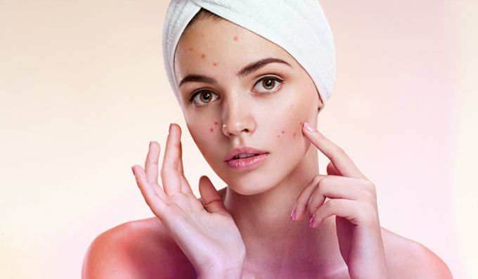How to fight acne with boric acid
